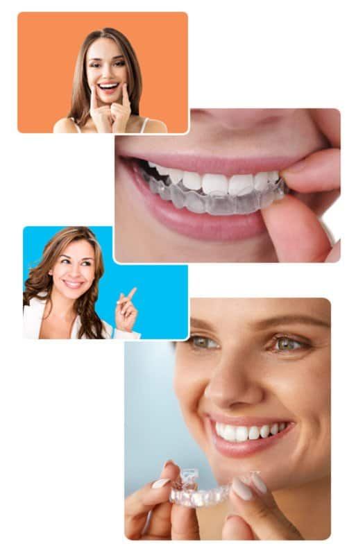 Happy Patients That Received The Invisalign Promotion