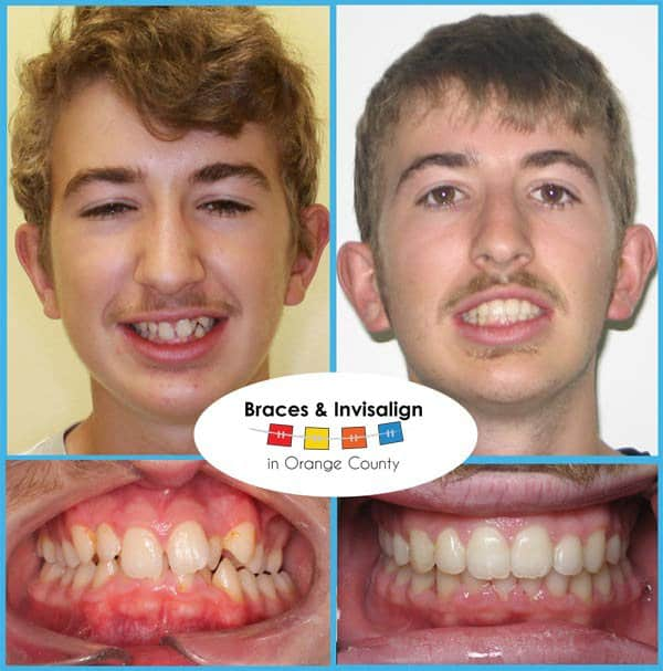 Adrian Before and After Braces