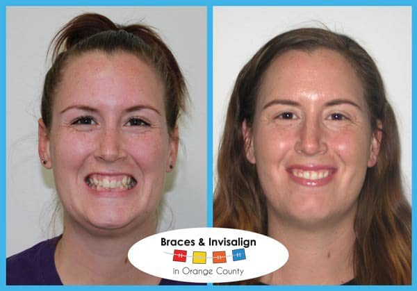 Alice Before and After Invisalign
