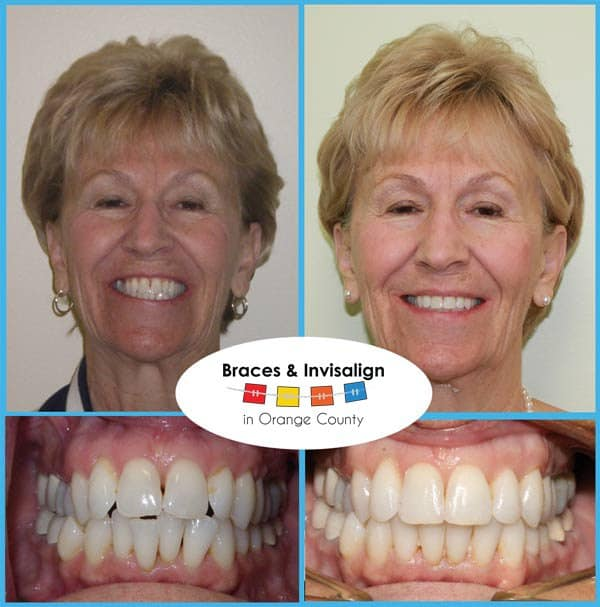 Barbara Before and After Invisalign