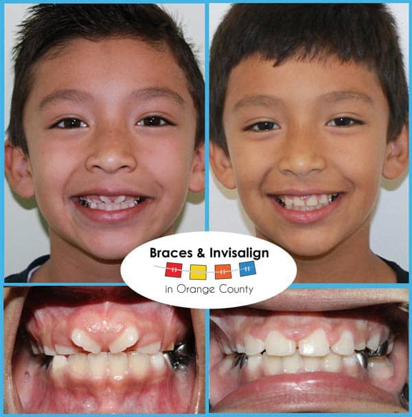 Dante Before and After Invisalign