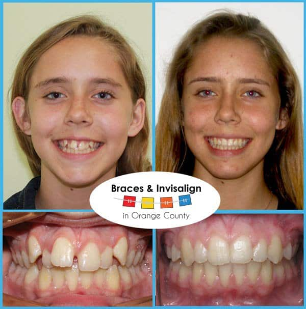Eliza Before and After Invisalign