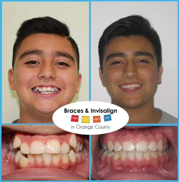 John Before and After Invisalign