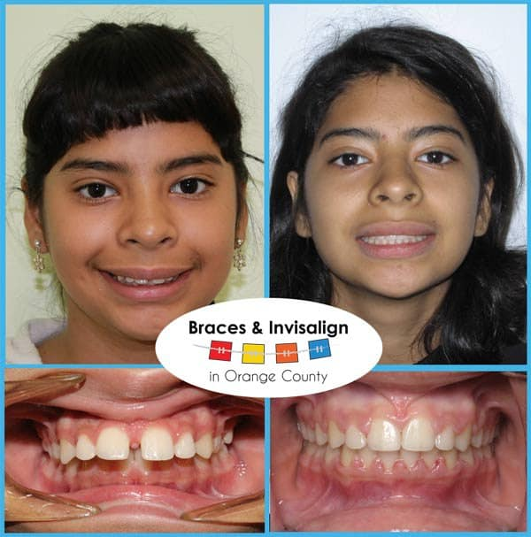 Jollie Before and After Invisalign
