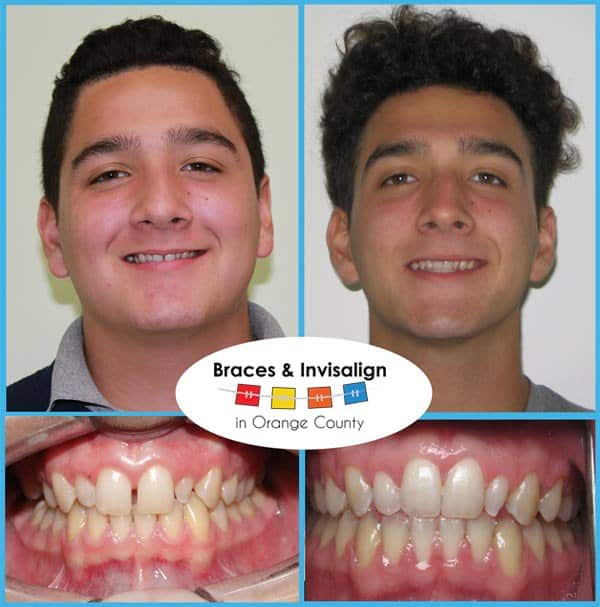 Joshep Before and After Invisalign