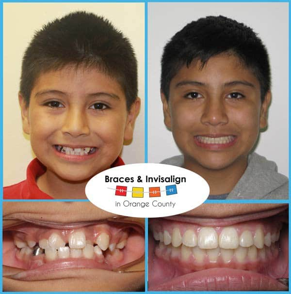 Julian Before and After Invisalign