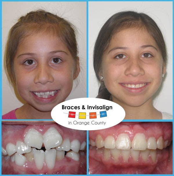 Karina Before and After Invisalign
