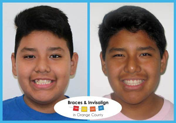 Luis Before and After Invisalign