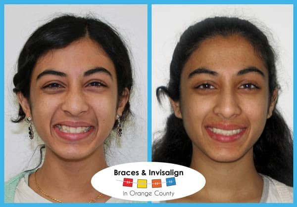 Mara Before and After Invisalign