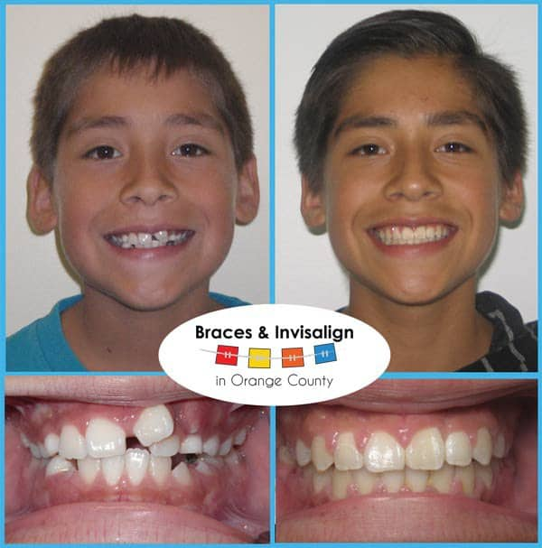 Raul Before and After Invisalign