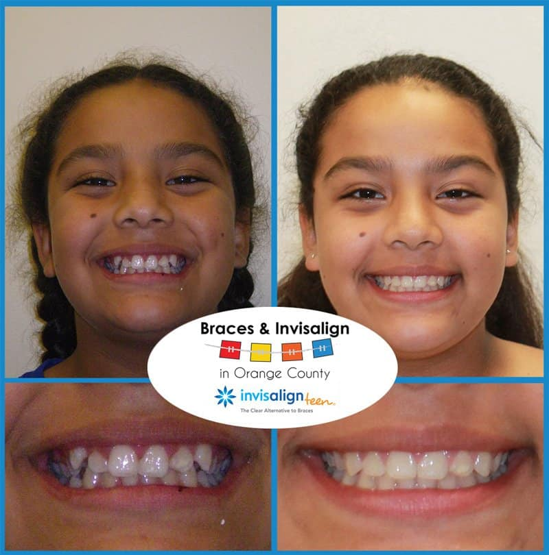 Rosa Before and After Braces