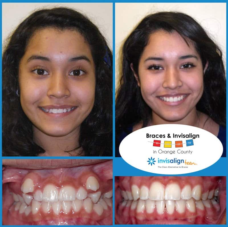 Jenny Before and After Braces
