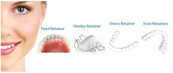 Braces and Invisalign in OC Retainers options