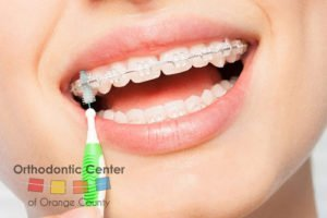 clean your new braces