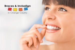 Woam With Invisalign Braces for an Alternarive to